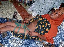 Genital mutilation in Somalia (photo: picture-alliance/dpa)