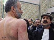 Injured Tunisian lawyer Abdraouf Ayadi (photo: AP)