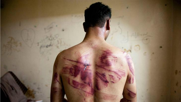 Torture victim from Aleppo (photo: Getty Images/AFP/J. Lawler)