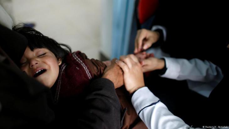 Treating a child suffering from cholera in Sanaa, Yemen (photo: Reuters)
