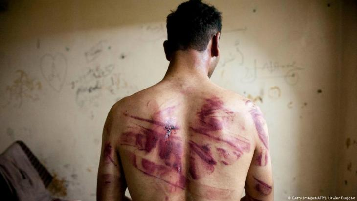 Syrian torture victim (photo: Getty Images/AFP/J. Lawler Duggan)