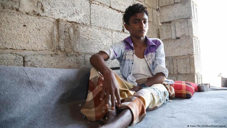 Save the Children press photo | Yemen war: this boy was seriously injured in two air strikes (photo: Save the Children/Sami Jassar)