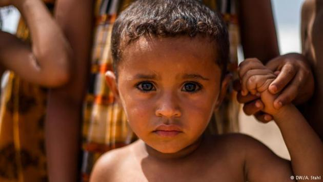 A Yemeni child, Markazi refugee camp, Djibouti (photo: DW/Andreas Stahl)