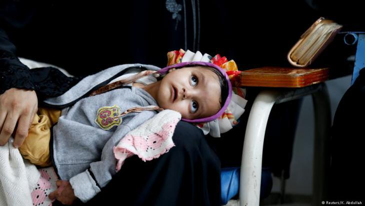 Child in the cancer clinic in Sanaa (photo: Reuters/K. Abdullah)